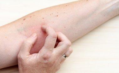 Picking skin